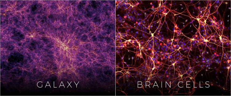 131261827_braincellsandgalaxy.png.e07e76d534c9c91edb24587ec831275f.png