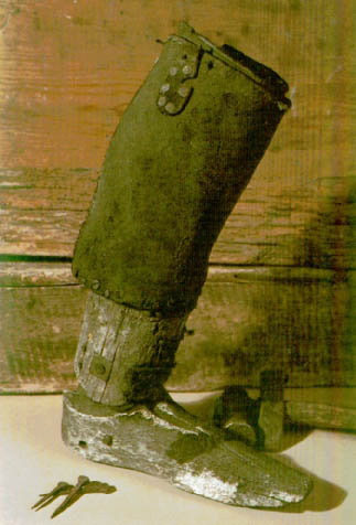 Moyle's leg